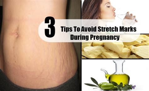 how to avoid stretch marks picture 11