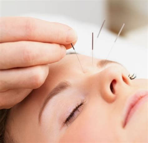 acupunture for weight loss picture 1