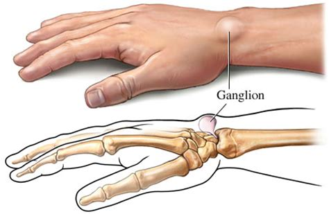 frankincense oil cured ganglion cyst picture 13