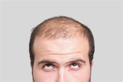 hair loss drug picture 7
