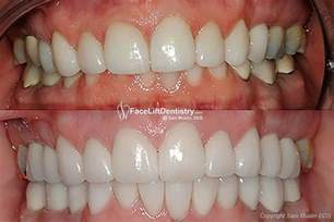dental correcing teeth from overbite picture 7