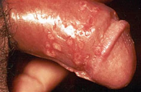 syphilis chancre color on penis tip picture 1