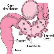 colon pockets picture 11