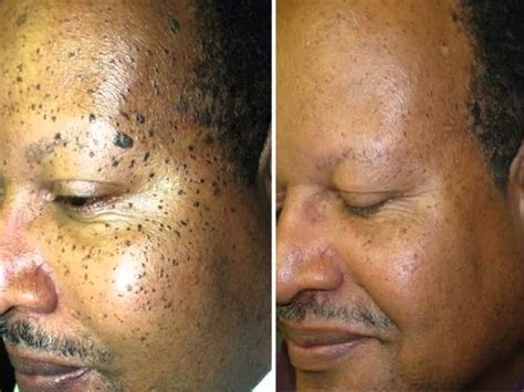 wart removal on face picture 6