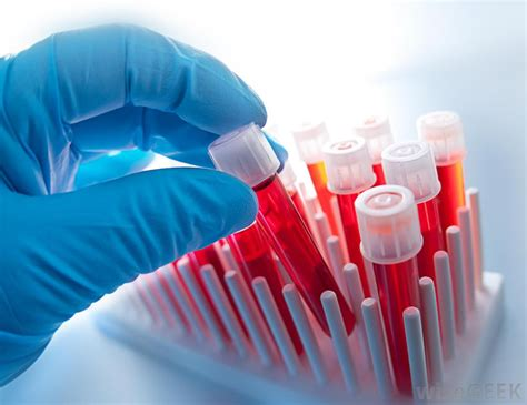 hemosoft cord blood picture 11