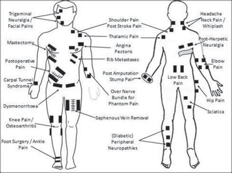 tens machine electrode placement for sexual pleasure picture 2
