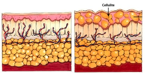 what is cellulite picture 5