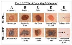 abcs of skin cancer picture 2