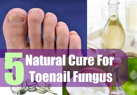 natural cure for nail fungus picture 2