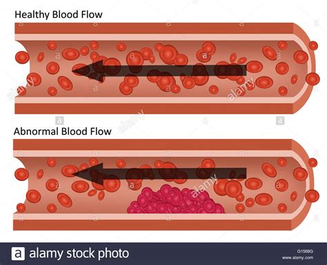 abnormal blood flow picture 11
