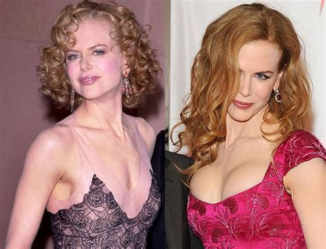 celebrities that have had breast augmentation jobs picture 3
