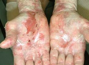 yeast infection syndrome picture 6