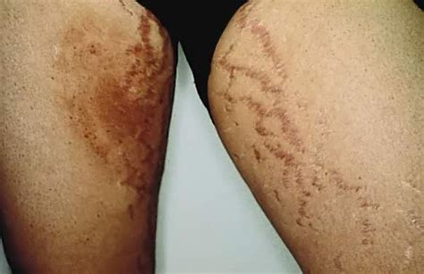 a few herpes appearing on top of thigh picture 12