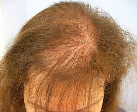 hair loss and vaccinations picture 2