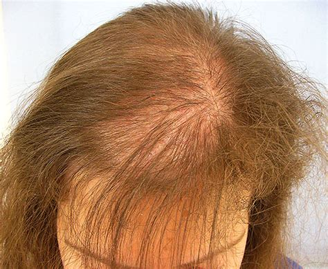 hair loss and vaccinations picture 1