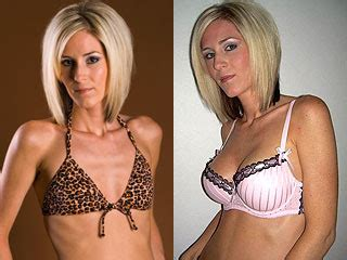 free breast implants for men picture 7