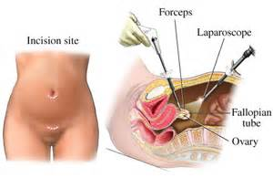 increased libido after tubal ligation, what to do picture 7