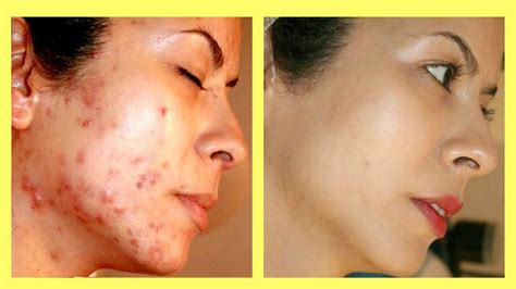 m pill for acne or scars picture 8
