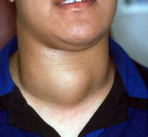 goiter on left lobe of thyroid picture 2