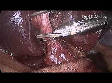 find good gall bladder surgeon in north dakota picture 14