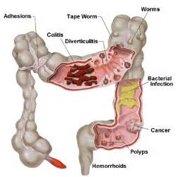 colon disorders picture 14