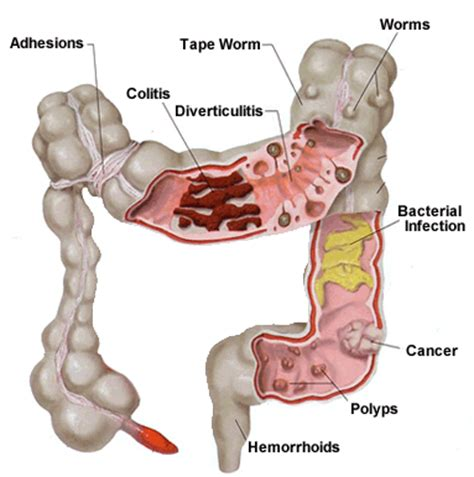 colon disorders picture 13