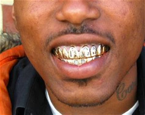 where to get gold teeth in new orleans picture 2
