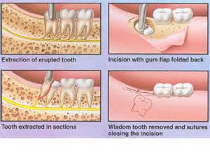how to remove wisdom h extractions picture 2