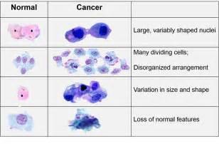 non malignant colon tumors picture 6