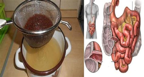 Cleansing toxic colon picture 11