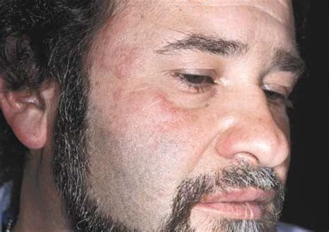 face herpes pictures picture 11