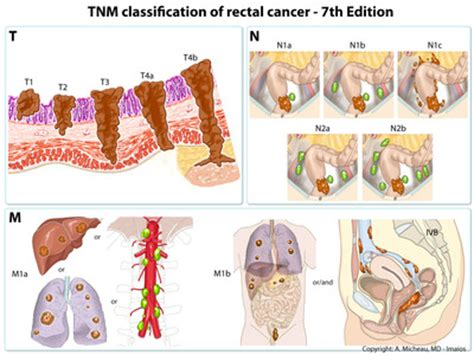 what is stage 8 cancer picture 15