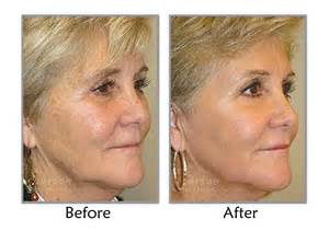 luminus fractional co2 laser resurfacing before and after picture 1