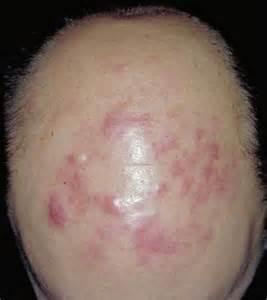 b cell lymphoma symptoms picture 5