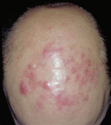 b cell lymphoma symptoms picture 2