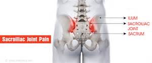si joint arthritis picture 10