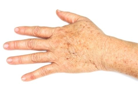 what do liver spots look like picture 11