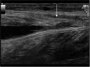 leg muscle hematoma picture 6