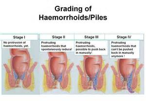 what causes hemorrhoidal picture 2