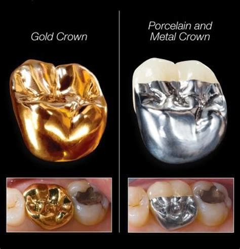 silver spring teeth crown picture 9
