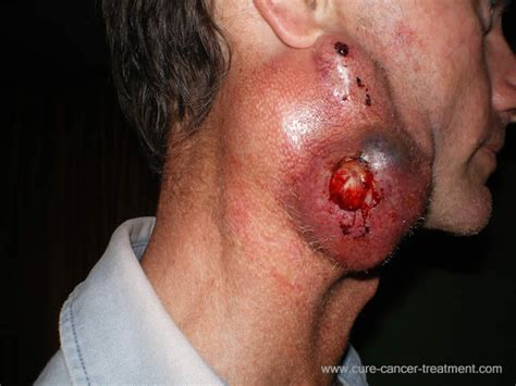 thyroid throat picture 9