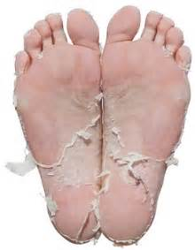 dry skin on feet and hiv picture 19