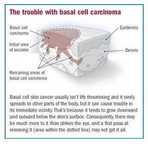 basal cell skin cancer picture 2