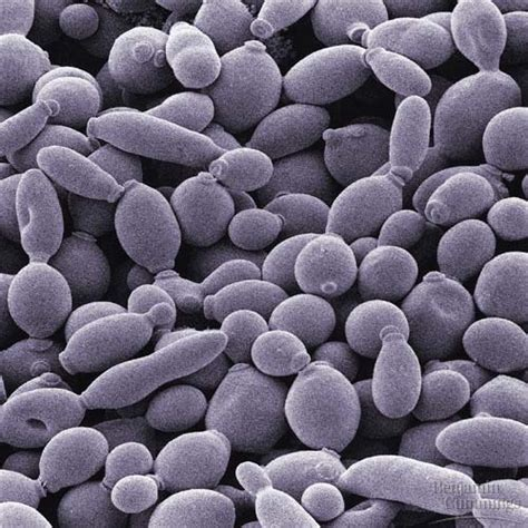 causes of yeast picture 6