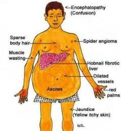 what causes sclerosis of the liver picture 10