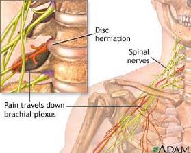 pinched nerve causes erection problems picture 7