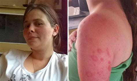alergic skin reactions to the sun picture 6