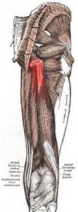 acute muscle tear picture 11