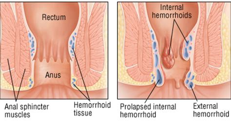 severe hemorrhoid pain picture 5
