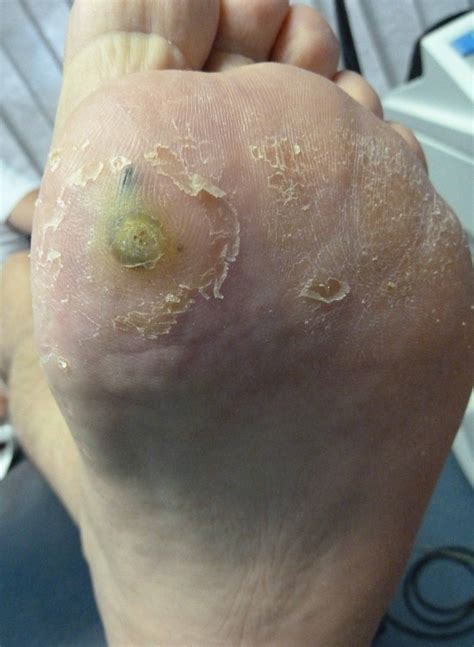 warts treatment picture 17